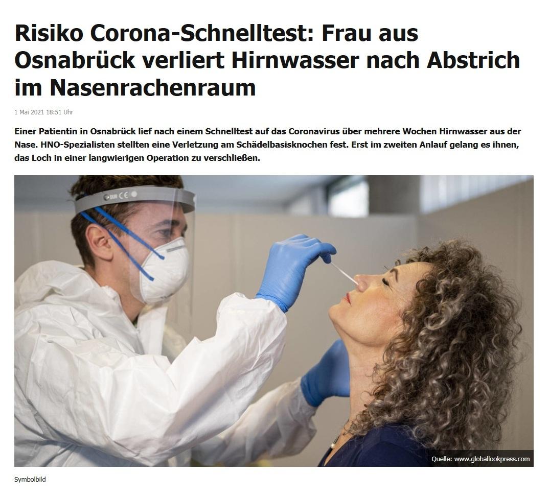 Risiko Corona-Schnelltest: Frau aus Osnabrück verliert Hirnwasser nach Abstrich im Nasenrachenraum -  RT DE - 1 Mai 2021 18:51 Uhr